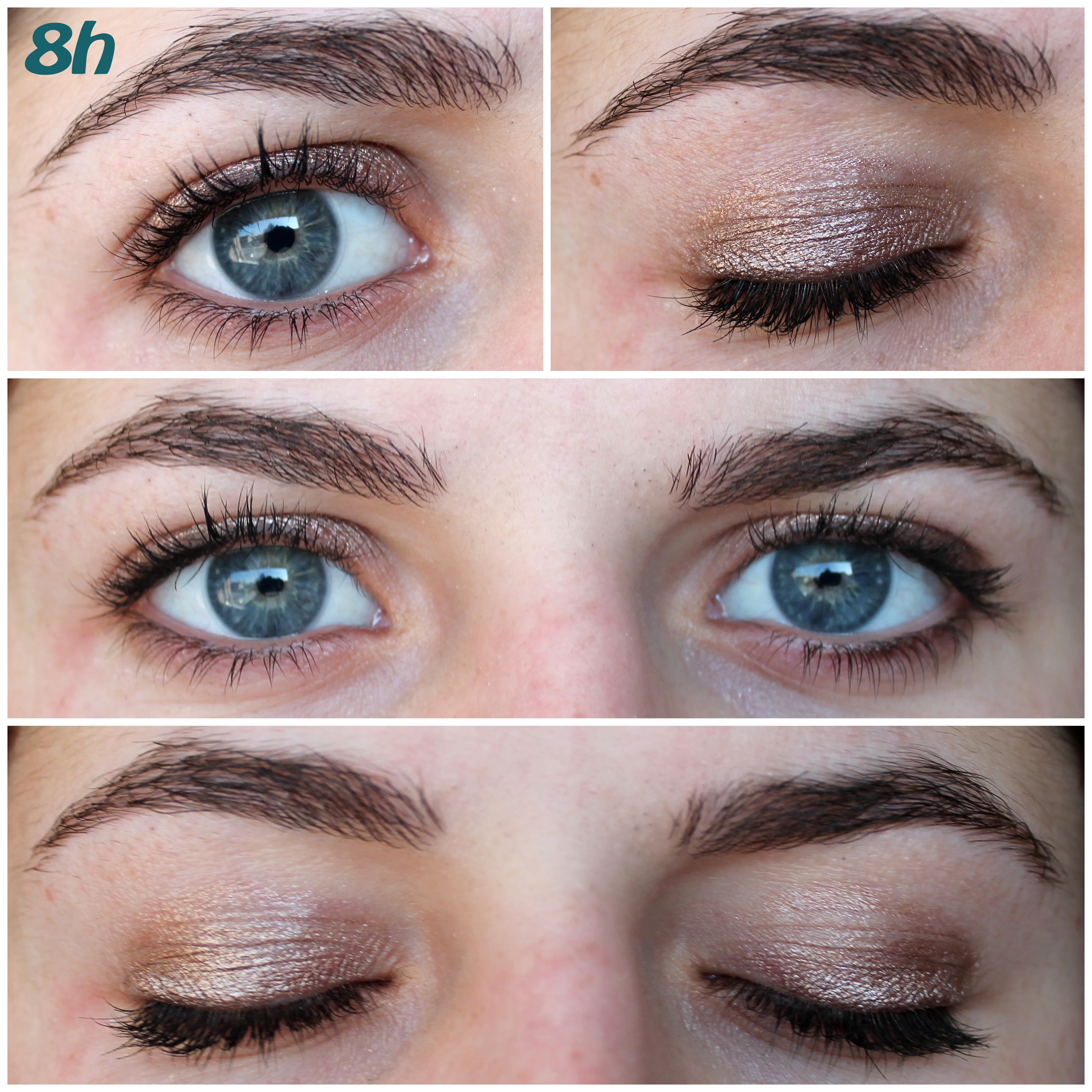 What does pink eye look like pictures 10